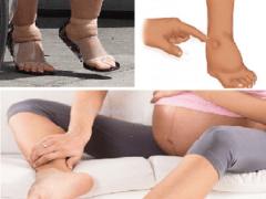 Отеки на поздних сроках беременности, что делать?