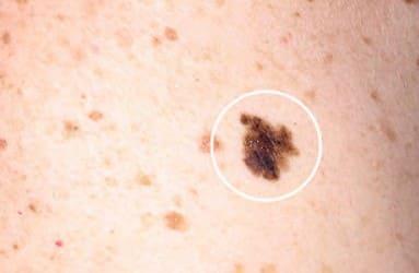 Melanoma de extensión superficial