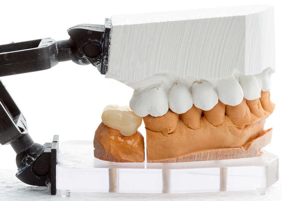 dental crown on model