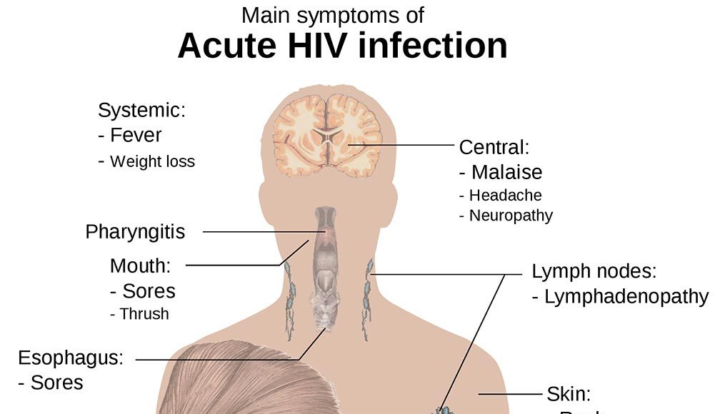 acute HIV paresthesia