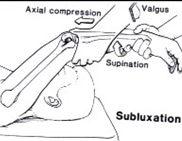 Pivot shift para avaliar instabilidade póstero-lateral do cotovelo