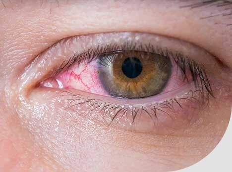 Conjunctivitis Caused by a Virus