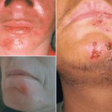 Герпес на подбородке: как лечить, каковы причины и симптомы его появления