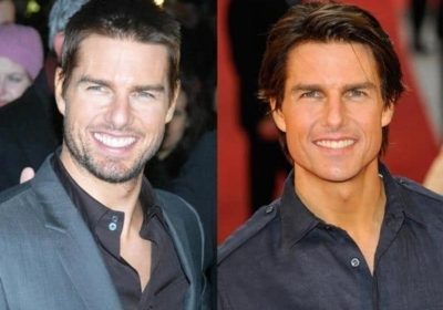 tom cruise plastic surgery