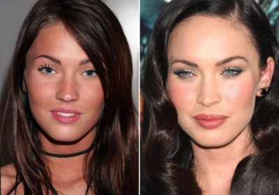 Do you think Megan Fox has had plastic surgery?