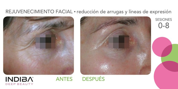 indiba-tratamiento-facial