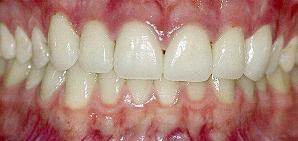 After 6 Porcelain Veneers and LaserSmile Whitening