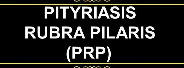 TOP DERMATOLOGIST PRESENTED A CASE STUDY OF ERYTHRODERMA DUE TO PITYRIASIS RUBRA PILARI