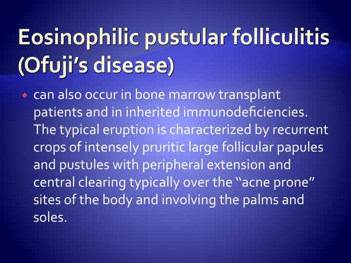 BEST SKIN SPECIALIST TALKS ABOUT EOSINOPHILIC PUSTULAR FOLLICULITIS OF OFUJI IN AN IMMUNOCOMPETENT (NON-HIV) PAKISTANI PATIENT