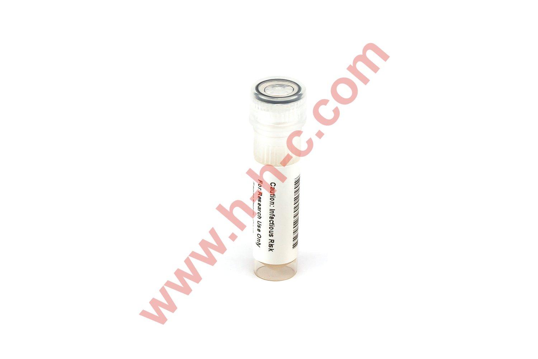NATtrol Salmonella typhimurium (Stool Matrix)