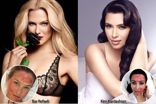 Bar Refaeli & Kim Kardashian Receive the Vampire Facial® Procedure