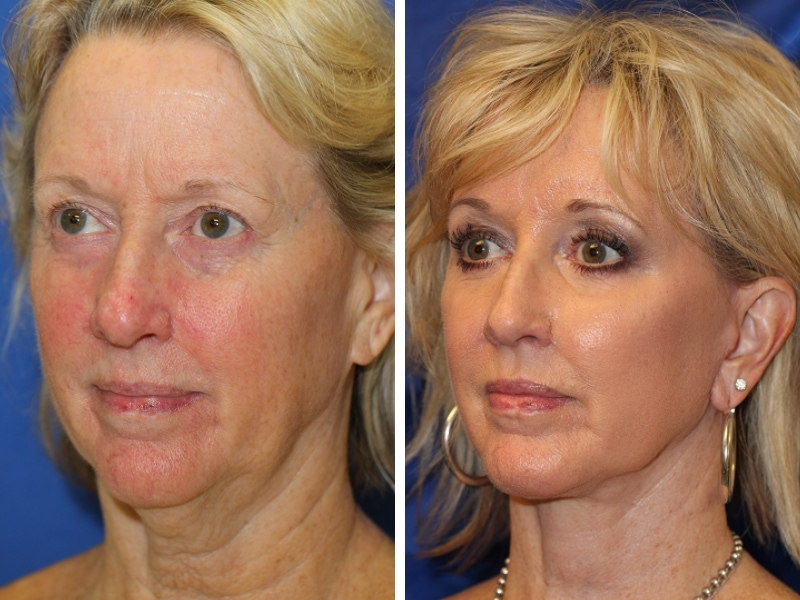 Before and After Face Fat Transfer