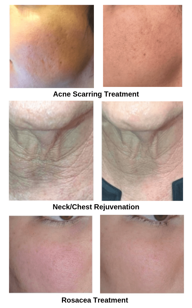 Aquagold Treatments Before & After