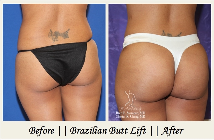 Brazilian Butt Lift P1