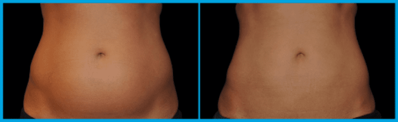 coolsculpting of the abdomen