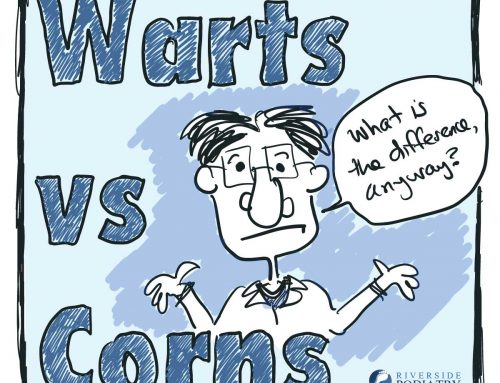Corns vs Warts