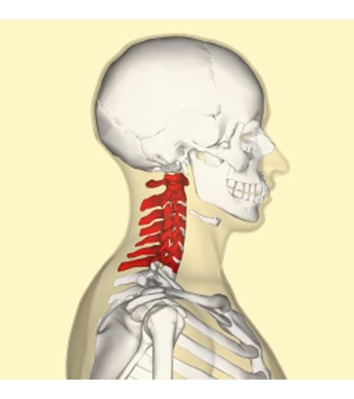Tensione muscolare al collo: cause