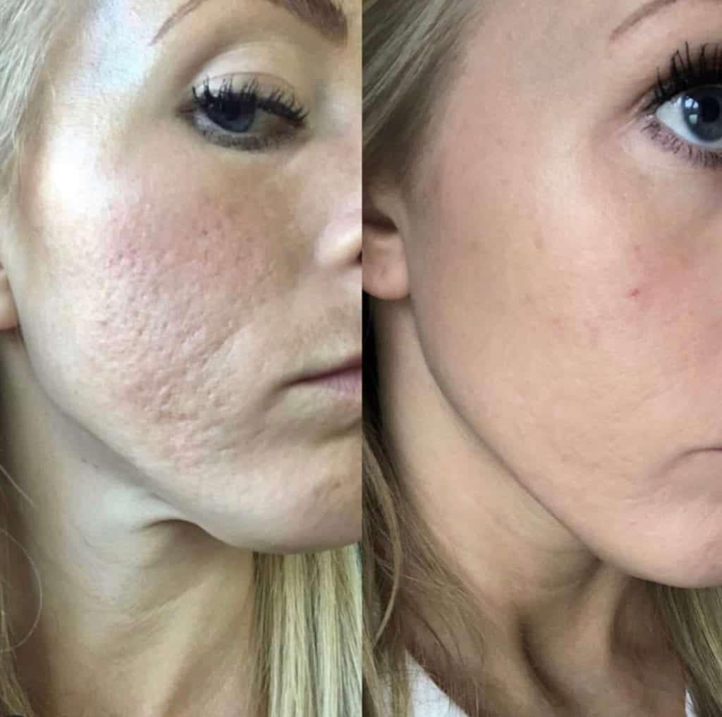 acne scarring - skin pen