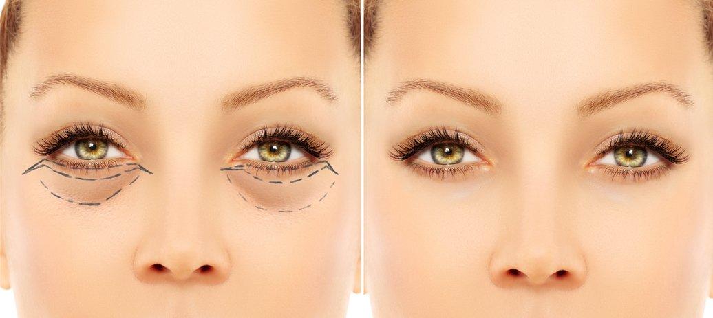 Augenringe entfernen – wie funktioniert das?