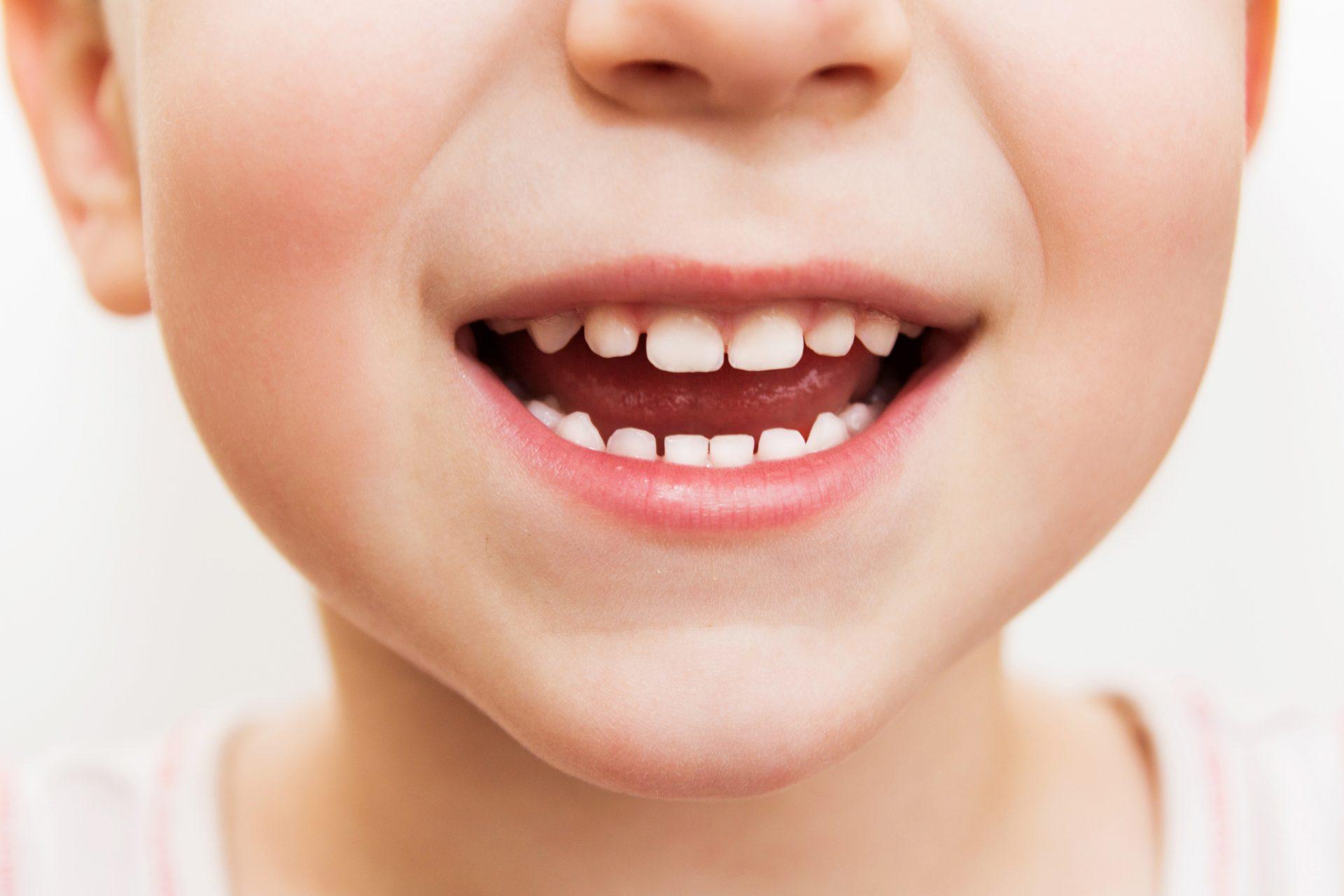Saúde bucal: como cuidar dos dentes da criança do jeito certo?