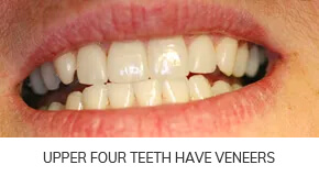 upper four teeth have veneers