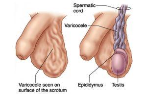 Laparoscopic Varicocelectomy in Bangalore