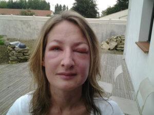 Photo de la jeune femme victime de l'attaque de frelon asiatique en Vendée