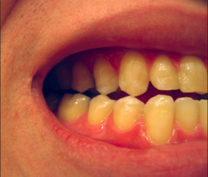 superficial-tooth-staining