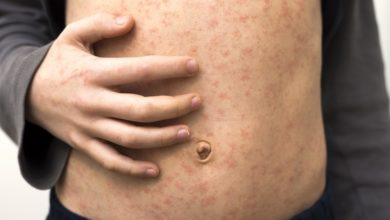 Photo of New measles alert brings Ipswich cases to eight
