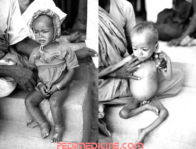 Child of Kwashiorkor and Marasmus
