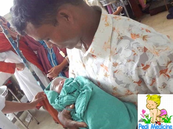 New Born Baby of Dwarf Lady with Father