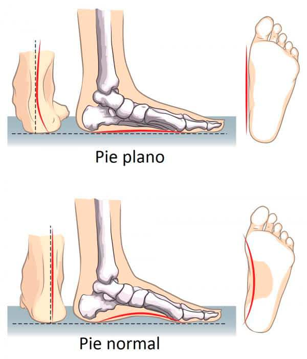 diferencias entre pie plano y pie normal
