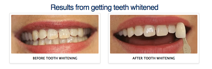 tooth-whitening-results