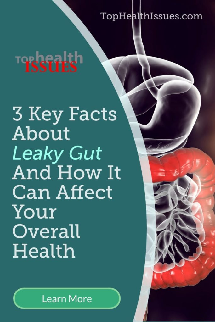 3 Key Facts About Leaky Gut And How It Can Affect Your Overall Health