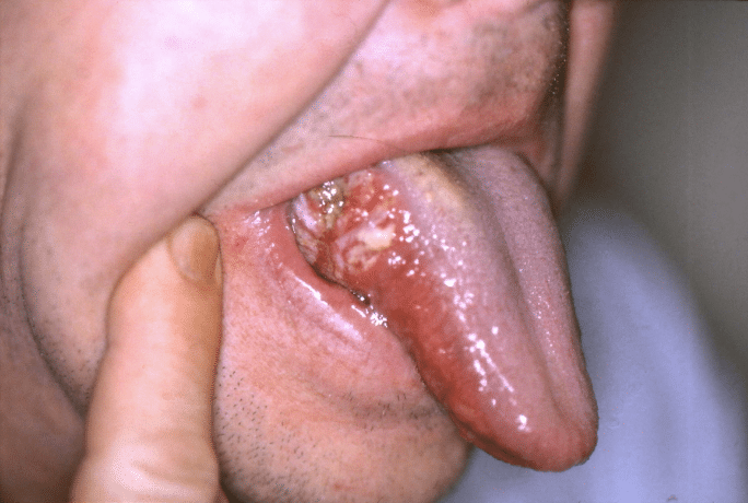 mouth-cancer