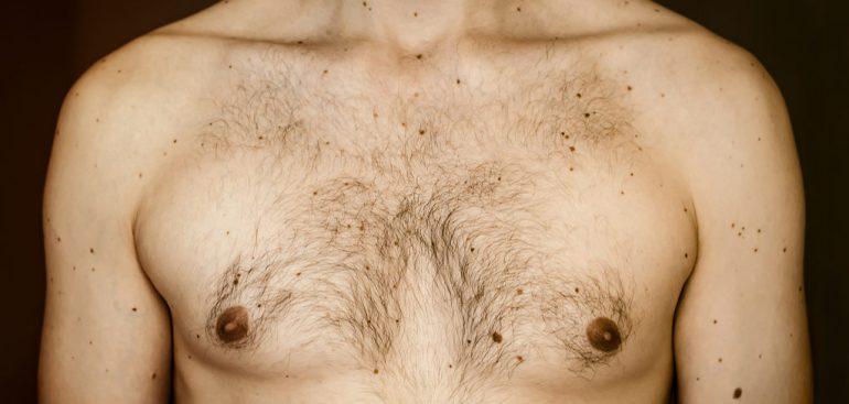 6 mitos e verdades sobre o câncer de mama masculino que você precisa saber!