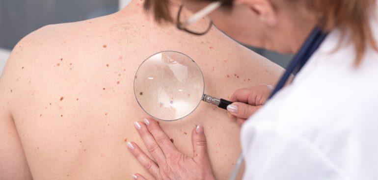 Entenda a relação entre melasma e câncer de pele.
