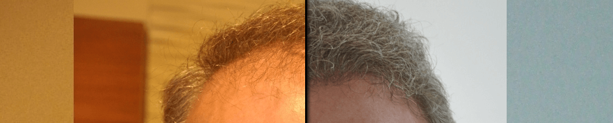 Before/After Choosing your hair transplant surgeon