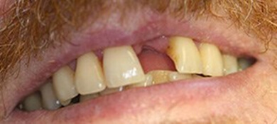 gum disease is the global leading cause of tooth loss