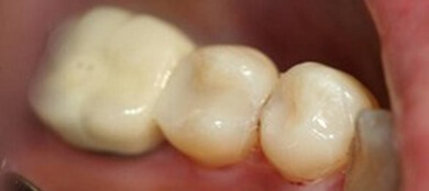 teeth with cavities often require fillings