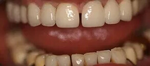 teeth after a cosmetic treatment using crowns and veneers