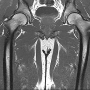 Resonancia Magnética de Cadera sin contraste