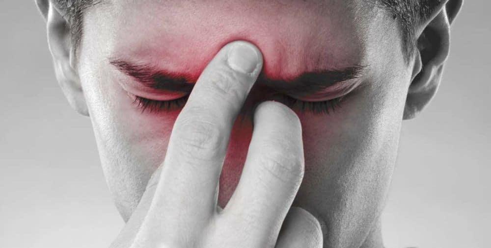 Sinusite l'importanza della diagnosi giusta
