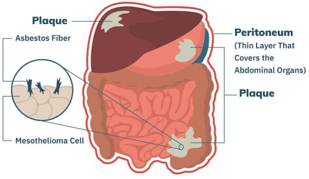 Peritoneal Mesothelioma | Treatment, Prognosis & Diagnosis