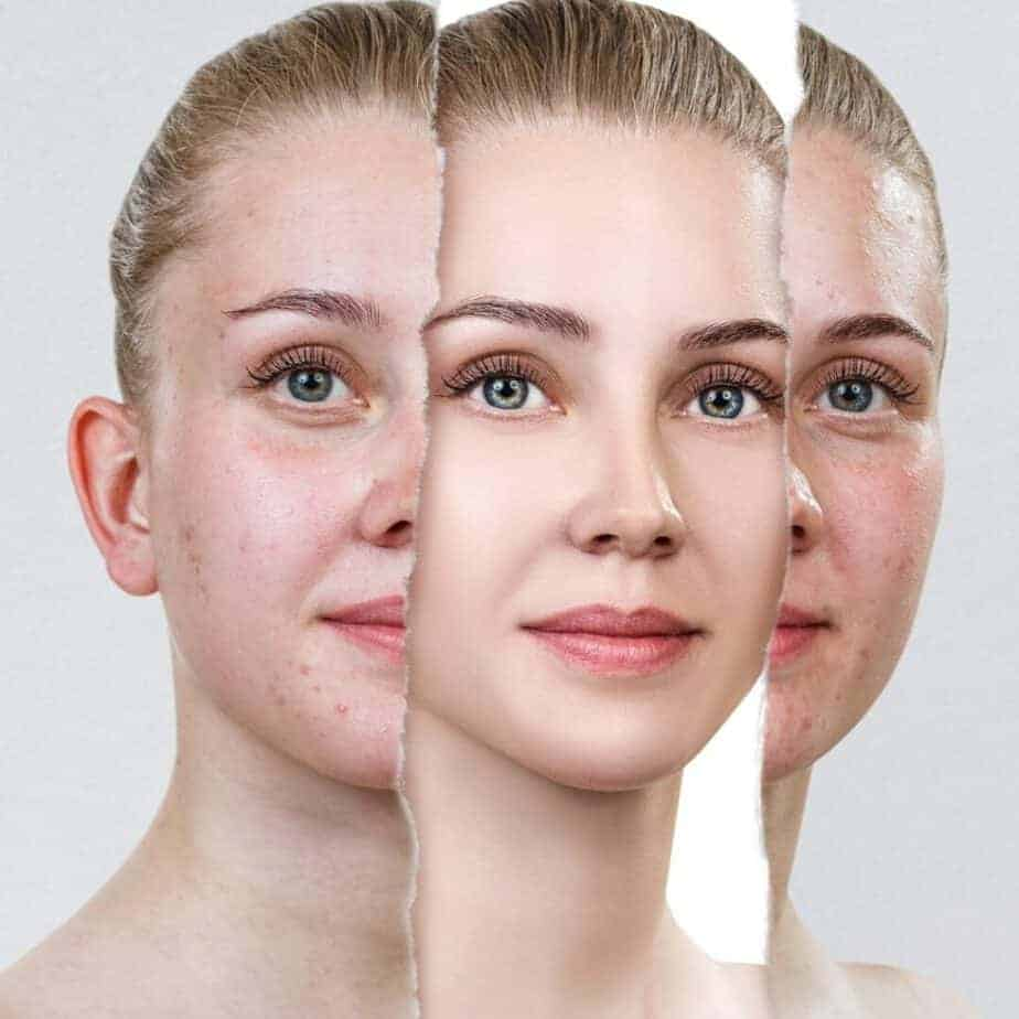 Essentiële ingrediënten in huidverzorging