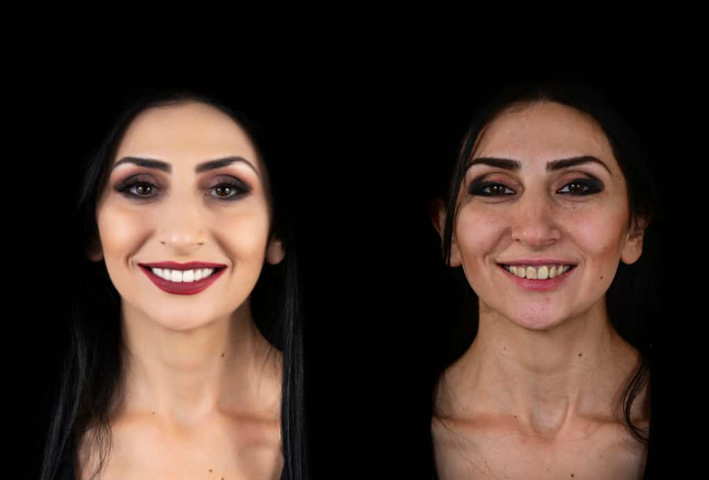 before and after picture for a young lady after having her ceramic veneers