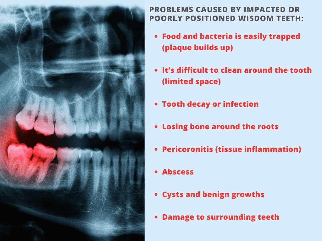 problems caused by impacted back molars