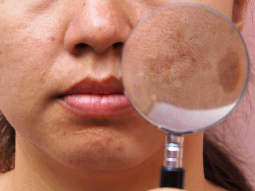 Pigmentstoornissen van de huid, welke bestaan er?