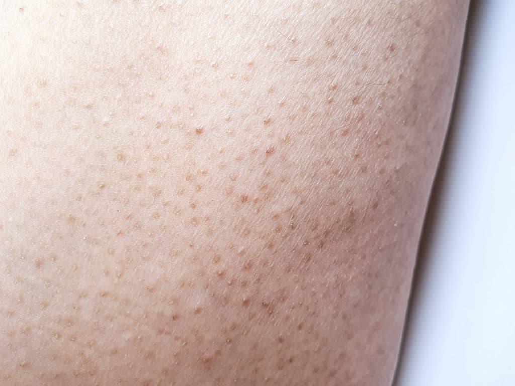 Keratosis pilaris, harde ruwe bultjes bovenarmen, rode bultjes bovenarmen, witgrijze bultjes bovenarmen, exfoliëren, laseren, diodelaser, ND YAGlaser, salicylzuur, azelaïnezuur, ureum, hydrateren, erfelijke huidaandoening