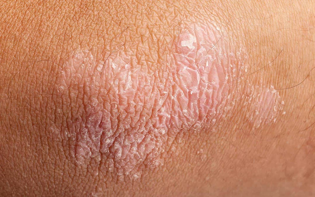 Changing The Way We Treat Psoriasis By Acknowledging Multiple Causes
